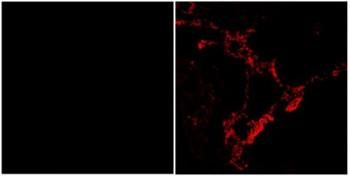 정상인의 폐 조직(왼쪽)에서는 도펠 단백질의 발현이 없으나, 폐암 환자의 조직에서는 도펠단백질이 많이 발현된다. - 한국과학기술연구원(KIST) 제공
