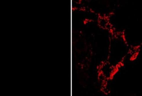 암 혈관세포만 선택적으로 공격하는 항암제 개발