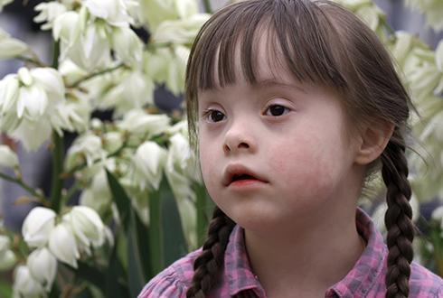 다운증후군 뇌기능 저하 메커니즘 최초 규명