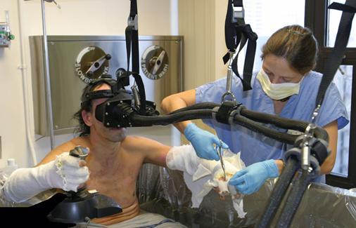 화상치료시 VR게임을 통해 진통효과를 기대할 수 있다. - 워싱턴대 HIT랩 제공