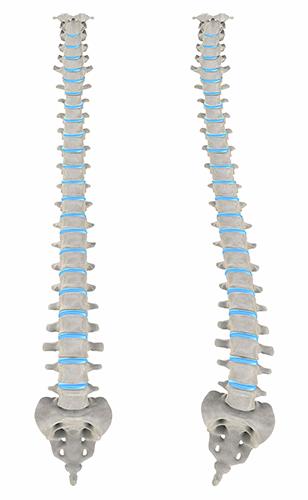정상적인 척추(왼쪽)와 척추측만증 환자의 - GIB 제공