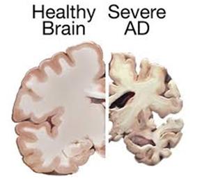 건강한 사람의 뇌(왼쪽)과 중증 치매 환자의 뇌(오른쪽). 중증 치매 환자는 정상인과 비교해 그 크기가 눈에 띄게 작으며, 내측 측두엽이 위축돼 있는 걸 볼 수 있습니다. - 위키피디아 제공