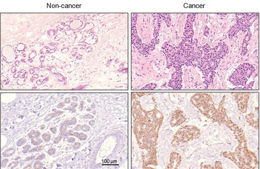 연구진은 유방암 환자의 조직(오른쪽)에서 많이 발견되는 새 전사인자(ZNF224)를 발굴하고 유방암과의 관련성도 규명했다. - 아주대 제공
