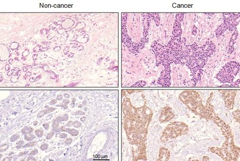 유방암 세포 조절하는 새로운 단백질 찾았다