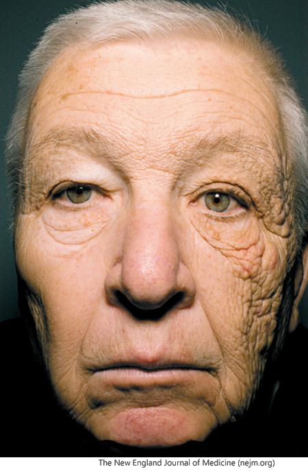 이 사진 본 적 있나요? 왼쪽 얼굴만 햇볕을 많이 쐬서 얼굴에 피부질환이 발생한 한 노인의 사진입니다. 햇빛, 즉 자외선은 피부화상, 피부노화, 암 유발의 원인이 됩니다. - 팝뉴스 제공