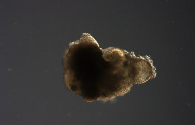 UC샌디에이고 연구팀이 만든 오가노이드 모습. - Cell Stem Cell 제공