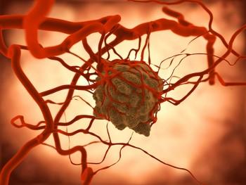 신생혈관은 암세포에 영양을 공급하거나 전이시키는 통로가 된다. 고 단장은 신생혈관을 차단해 암세포를 사멸시키는