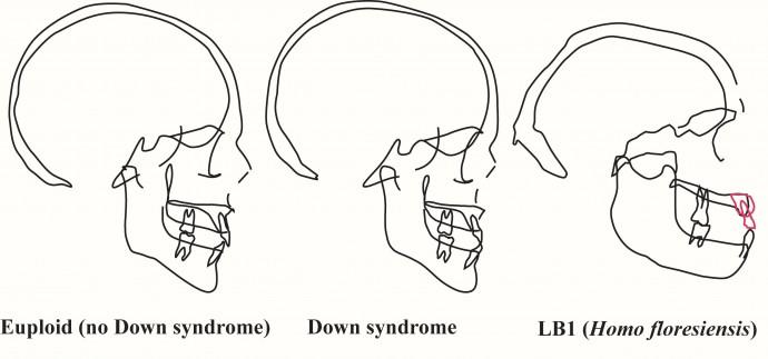현생 인류의 뇌(왼쪽), 다운증후군을 앓고 있는 환자의 뇌(가운데)는