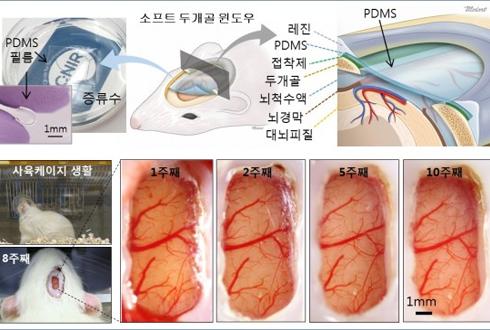 살아있는 두뇌 속 실시간 관찰 '두개골 윈도' 개발
