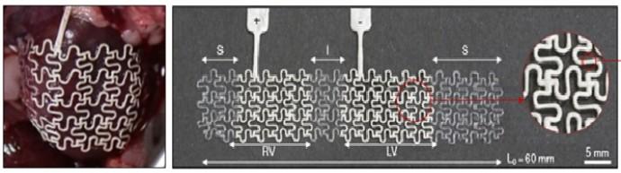 소프트 심장 자극기의 구조(오른쪽)와 쥐의 심장에 장착한 모습. - 기초과학연구원(IBS) 제공