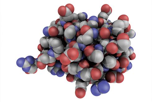 냉방병 원인균의 독특한 유비퀴틴화