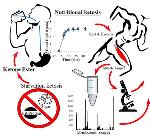 우리 몸은 굶주려 체내 포도당이 고갈되면 지방세포에 저장해둔 지방산을 케톤체로 분해해 이용한다. 이를 '굶주림 케토시스(starvation ketosis)'라고 부른다. 최근 케톤체를 섭취해 체내 포도당이 부족하지 않을 때 세포내 대사와 운동수행능력의 변화를 알아본 연구가 발표됐다. 연구자들은 이를 '영양 케토시스'라고 불렀다. - 셀 대사 제공