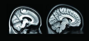 김 교수팀이 개발한 한국 노인 표준 뇌(왼쪽)와 기존의 서양인 표준 뇌(오른쪽). - 분당서울대병원 제공