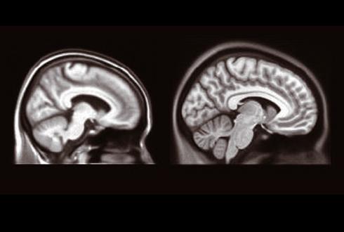 한국 노인에 꼭 맞는 표준 뇌 모형 개발