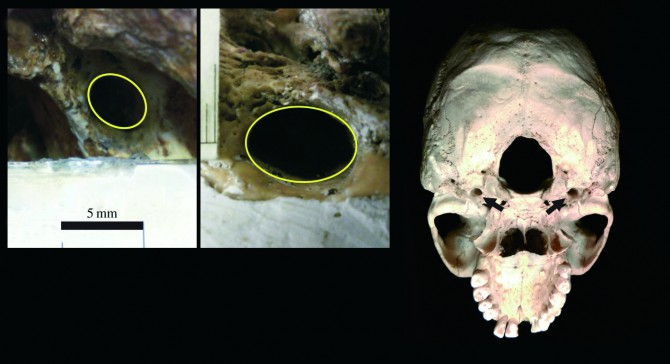 왼쪽은 오스트랄로피테쿠스 아프리카누스, 두 번째 사진은 현생인류인 호모 사피엔스의 목 동맥 흔적. 오른쪽 사진은 두개골을 뒤집어 놓은 모습으로, 점선으로 표시된 부분이 목 동맥이다. - University of the Witwatersrand 제공