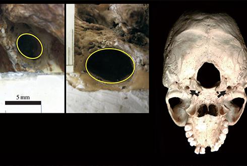 사람은 초기 인류보다 뇌 혈류량 6배 많게 진화