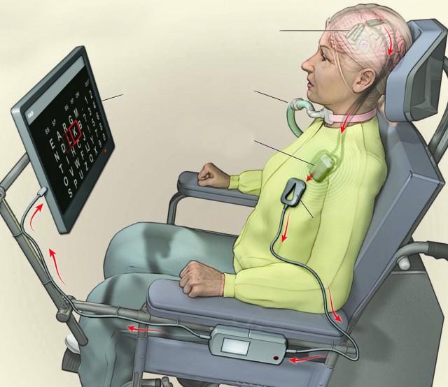 네덜란드 위트레흐트대 의대 연구팀이 전신마비 환자를 위해 개발한 뇌 임플란트. 세계 최초의 가정용 뇌 임플란트다. 환자는 생각만으로 태블릿PC의 커서를 움직여 단어를 입력할 수 있다. - NEJM 제공