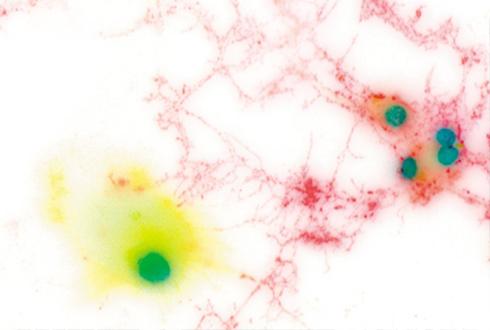 뇌 속 면역 담당한 미세아교세포의 두 얼굴