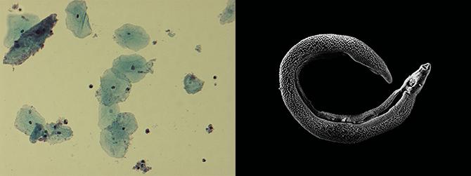 가드네렐라 바지날리스에 감염된 질 상피세포(왼쪽)와 주혈흡충(오른쪽) 사진. 세균성 만성 질염이나 기생충 감염 때문에 아프리카의 어린 여성들이 HIV에 감염될 위험이 높다는 연구 결과가 나오고 있다. - 퍼블릭도메인 제공