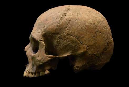 말라리아는 2000년 전 로마제국 시대에도 있었다