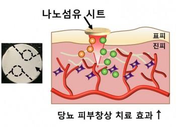 연구진이 개발한 창상 피복재(왼쪽)와 상처 부위에 부착해 치료하는 모식도. - 부산대 제공