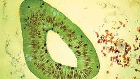 [제13회 국제바이오현미경사진전 수상작] 식물처럼 보이지만 사실은 동물 조직