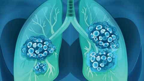 전국민 암발생률 3년 연속 줄었다…갑상선암 무려 28%나 감소