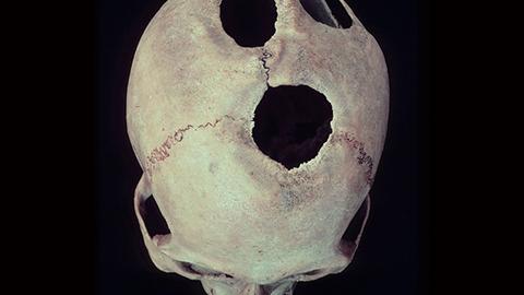 고대 중국에서 두개골 수술을?
