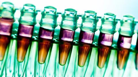 줄기세포치료 규제 완화한 EU…최근 규제 강화 목소리 높아