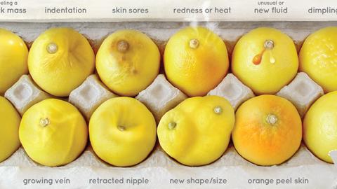 레몬으로 배우는 유방암 징후 '화제'