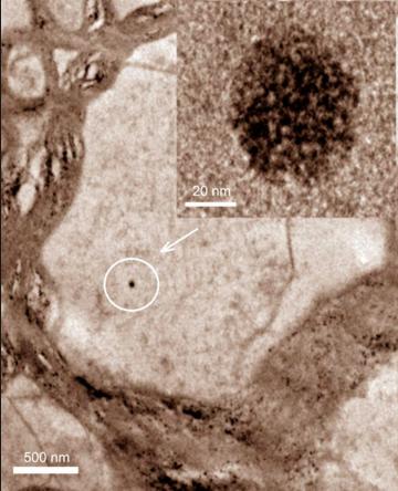 자동차 엔진에서 연료가 연소할 때 발생하는 자철석 나노입자가 사람의 뇌(전두피질)에서 발견됐다는 연구결과가 지난해 발표됐다. 연구자들은 이 입자가 후각기관을 통해 들어온 것으로 추정했다. 세포내 자철석 나노입자(오른쪽 위는 확대이미지)의 전자현미경 사진. - 미국립과학원회보 제공