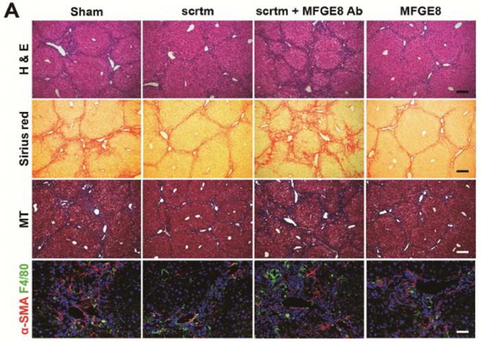 대조군 (sham, 맨 왼쪽)에 비교해, MFG-E8을 주사했을 경우 (맨 오른쪽) 분비단백질을 모두 모아 주사 했을 때와(scrtm, 왼쪽에서 두 번째) 동일한 섬유화 치료 효과를 보이며, 분비단백질들에서 MFG-E8의 활성을 제거 할 경우(scrtm+MFG-E8 Ab, 왼쪽에서 세 번째) 섬유화 치료효과가 소실됨을 증명함. - 보건산업진흥원 제공