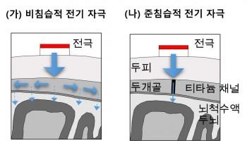기존 비침습적 방식(왼쪽)은 전기 자극이 뇌까지 전달되는 과정에서 퍼져 약해지지만, 준칩습적 방식(오른쪽)은 뇌까지 바로 자극을 전달해 줄 수 있다는 장점이 있다. - GIST 제공