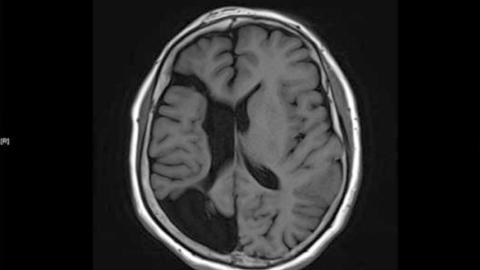 뇌전증 환자 줄었지만 고령화 속 노인환자 증가현상 심화