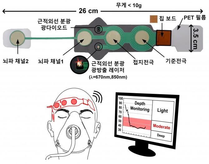 KAIST 연구진이 국내 기업 케이헬쓰웨어와 공동으로 개발한 무선 마취심도계측기의 구성을 나타낸 모식도. - KAIST 제공