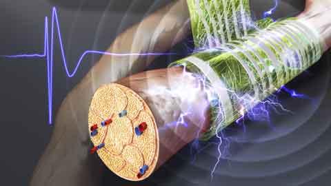 몸안에 이식해도 염증 염려 대폭 줄인 신경 전극 개발
