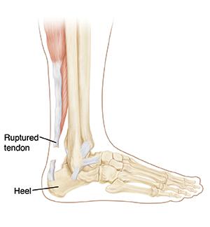 아킬레스건은 장딴지근과 뒤꿈치뼈를 이어주는 힘줄이다. 무리한 힘을 받으면 파열될 수 있지만 힘줄과 뼈가 떨어지는 일은 거의 없다. - www.fairview.org 제공