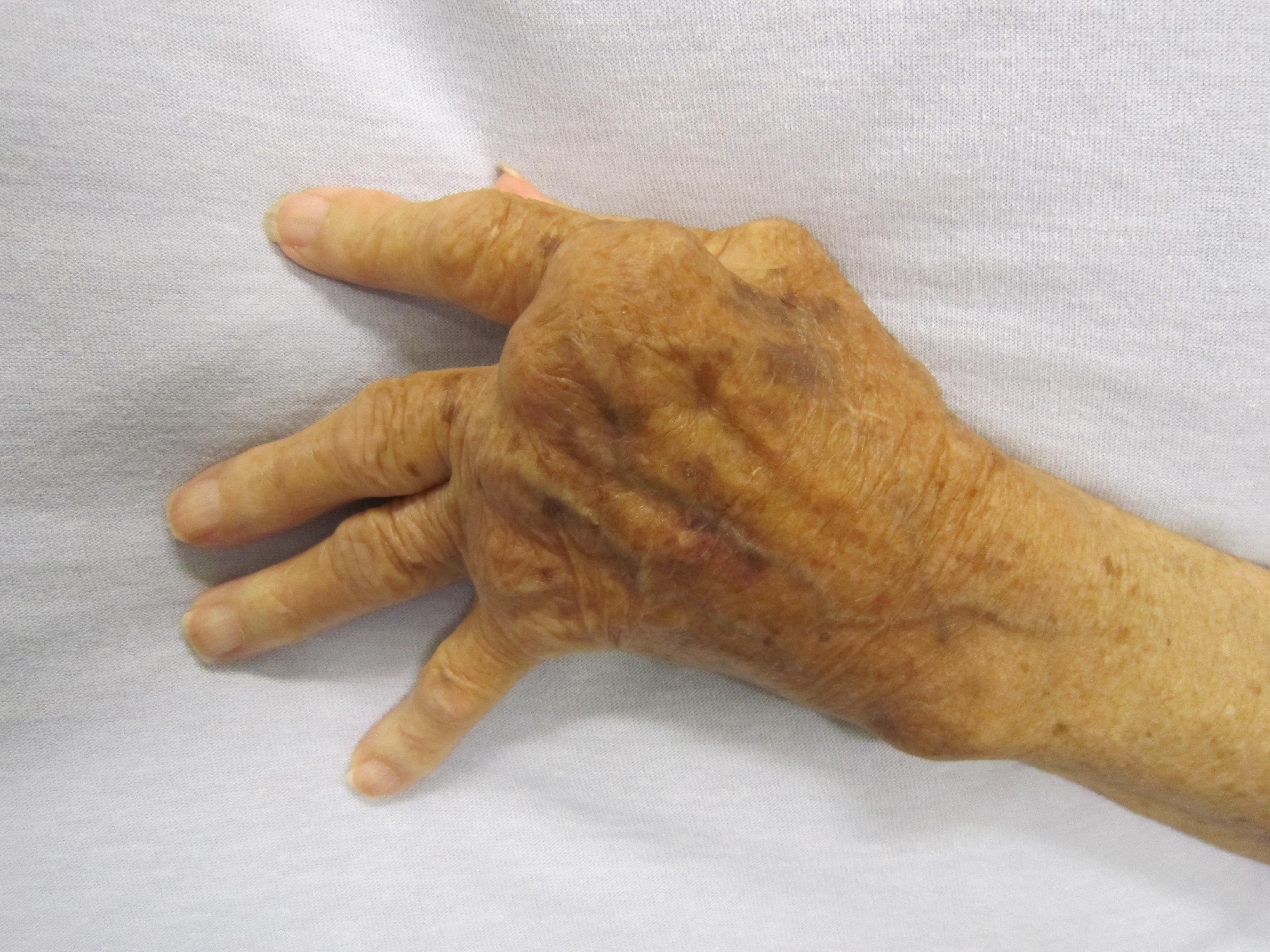 류마티스 관절염 환자의 손. 류마티스 관절염이 발생하면 염증으로 인해 혈액 내 백혈구들이 관절로 모여 들게 되고, 그 결과 관절이 부으면서 통증이 나타난다.
