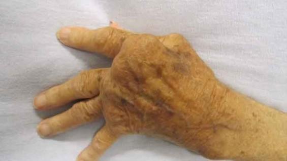 난치성  '류마티스'  치료 후보물질 개발