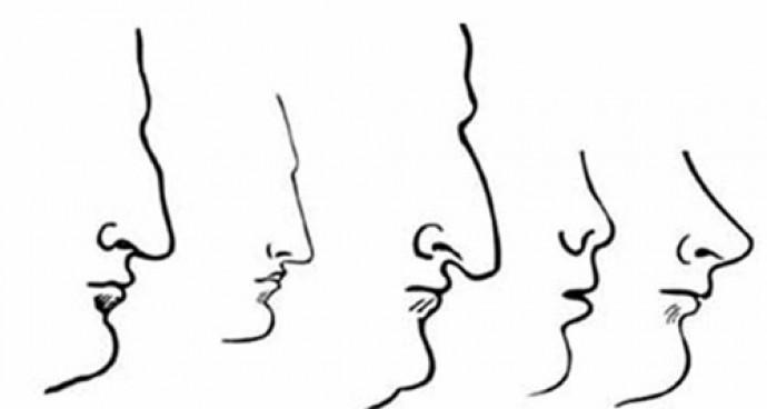 인류에게서 가장 널리 발견되는 코의 유형 5가지. - 두개안면성형외과학회지 제공