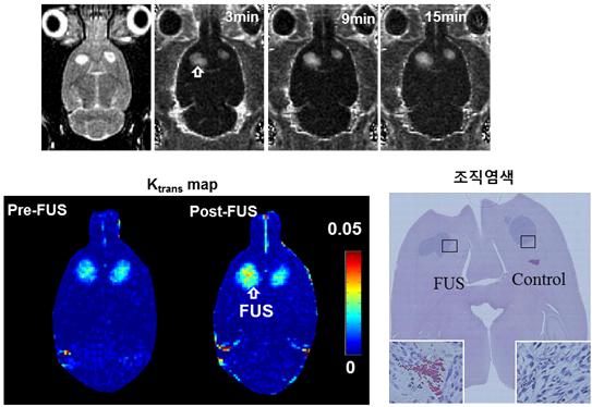 뇌암 부위에 초음파를 집속해 뇌혈관장벽을 열자, 투약된 항암제가 뇌암 부위에 3배가량 잘 전달된 사실이 확인됐다. - 대구경북첨단의료산업진흥재단 제공