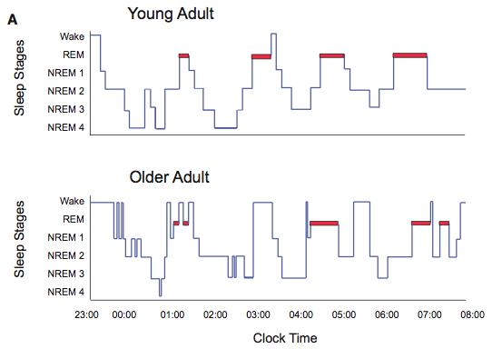 나이가 들수록 수면시간이 줄어들 뿐 아니라 수면의 질도 떨어진다. 수면의 구조를 단계에 따라 보여주는 그래프로 젊은이(위)와 노인(아래)에서 상당한 차이가 보인다. 자세한 설명은 본문을 참조하라. - 뉴런 제공