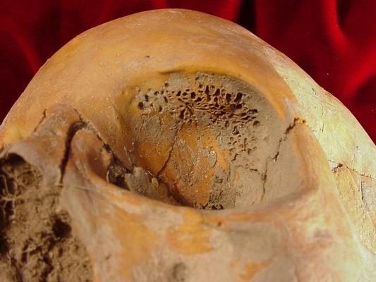 먹는 게 부실해 만성빈혈에 시달리면 두개골에 골다공증이 생길 가능성이 높다. 눈확 위쪽의 뼈에 구멍이 숭숭 뚫려 있는 cribra orvitalia 증상을 보이는 두개골이다. 동주시대 여성 두개골 다수에서 이런 증상이 보인다. - bonebroke.org 제공