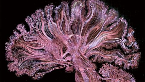 50만 개의 뉴런으로 직접 뇌를 그리다