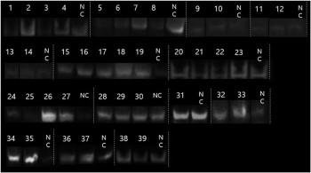 전립선 암 환자 소변 내 융합유전자 검지 결과 - KIST 제공