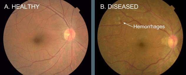 (A)는 건강한 환자, (B)는 당뇨성 망막병증 환자. 출혈(Hemorrhages)를 통해 진단할 수 있다.