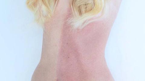 피부 색깔이 둘인 여성, '키메라 현상' 화제