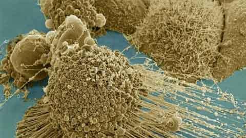 암 세포 '다리' 없애 전이 막는다