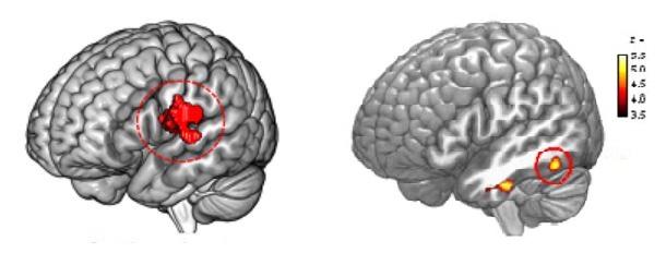말하기 능력에 관여하는 중심판개피질(왼쪽 빨간색)과 단어 철자 암기, 복잡한 단어의 자소 구분 등에 중요한 역할을 하는 왼쪽 하후측 측두피질(오른쪽 노란색). 성상세포에서 특이적으로 발현되는 유전자인 아쿠아포린4가 많이 발현된 사람일수록 이 부위가 발달하는 것으로 나타났다. - 미래창조과학부 제공