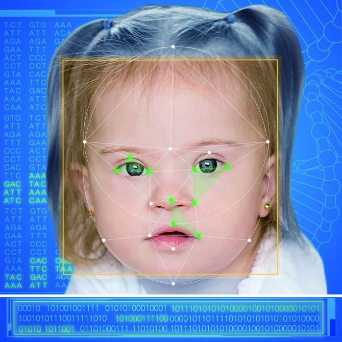 페이스투진 앱은 얼굴과 눈, 코, 입의 모양, 높낮이와 같은 특성을 이용해 유전병을 진단한다. - FDNA 제공
